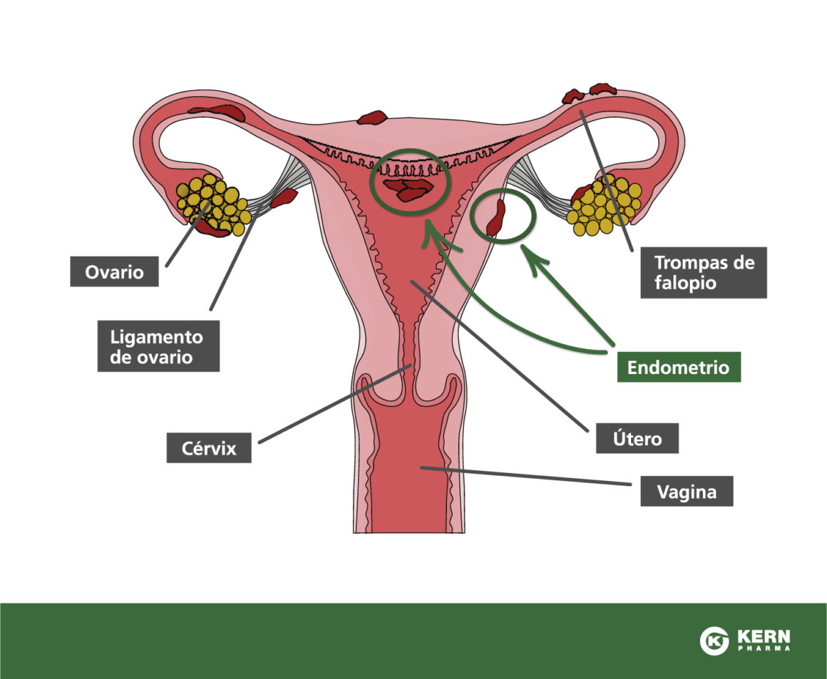 ENDOMETRIOSIS. Diagnostico, Estadiage y Tratamiento